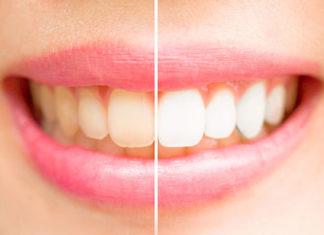 Wybielanie zębów – co to