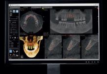 Precyzja zdjęć pomocą w stomatologii