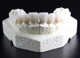 5 mitów na temat implantów zębowych